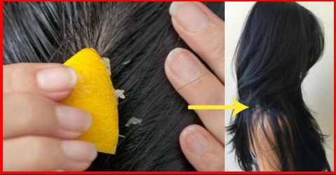Maneiras de regenerar o cabelo com limão: Ele favorece o crescimento