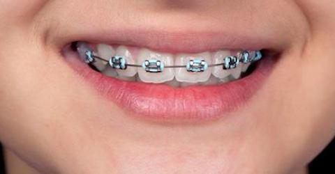 Usa aparelho? Será que seu dentista não te enganou?