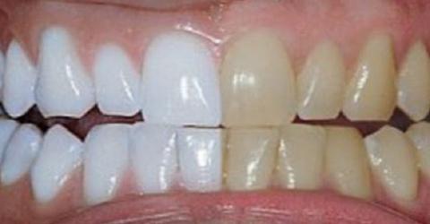 Quatro formas eficazes de branquear os dentes em casa, naturalmente
